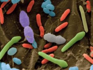 gut-bacteria-300x224